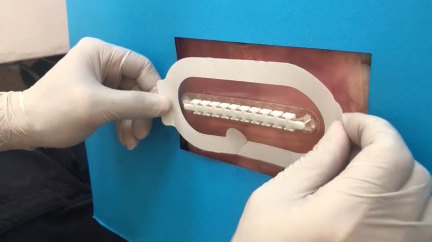 Aplicación del dispositivo sobre la piel para iniciar la cirugía.